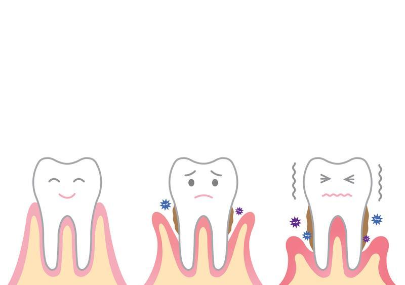 Parodontologie-Illustration