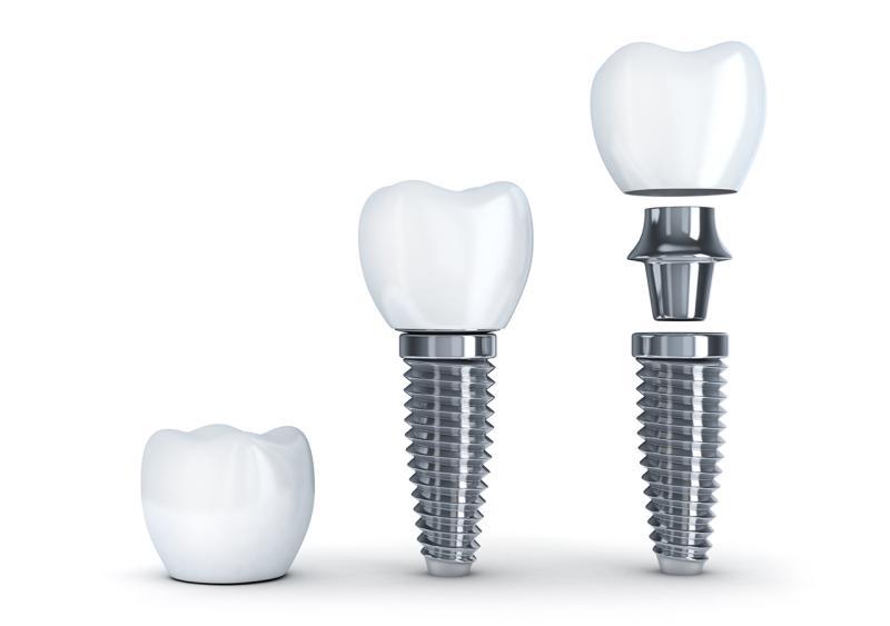Implantate-Implantologie