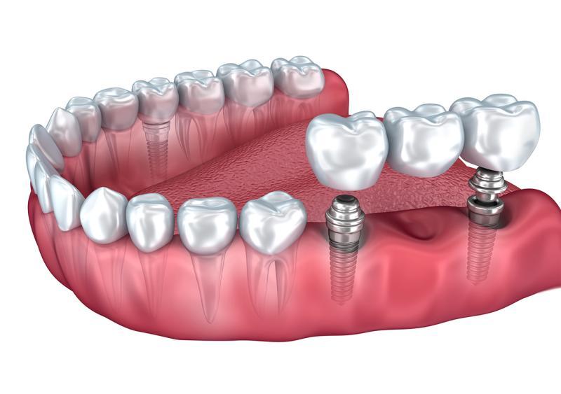 verkuerzte-Zahnreihe