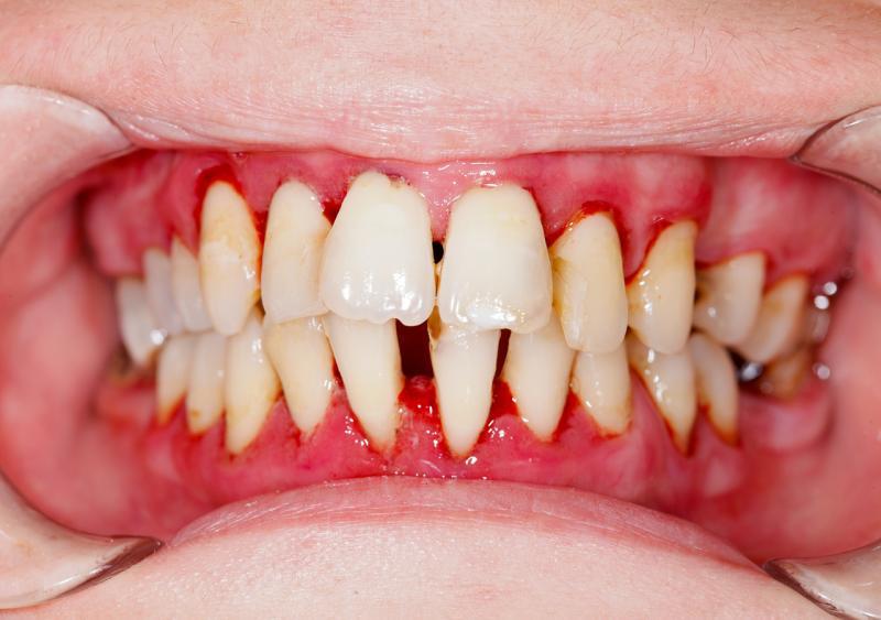 Parodontitis-Parodontologie